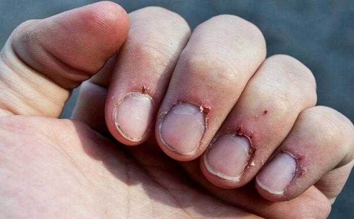 Заусенцы кровоточат