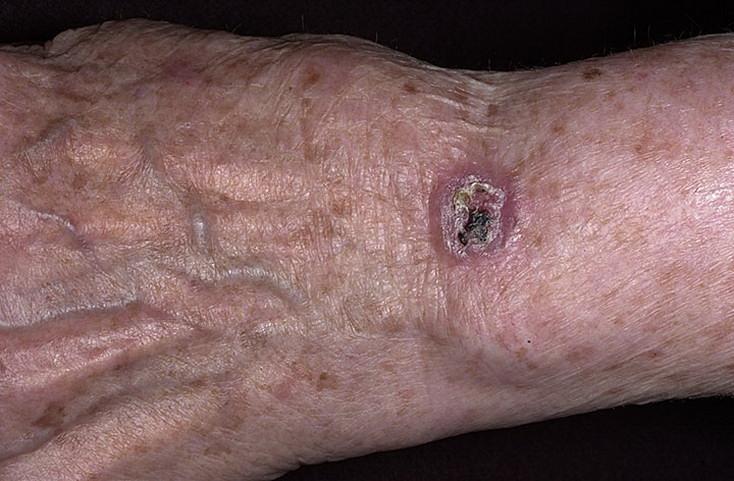 Базалиома на руке