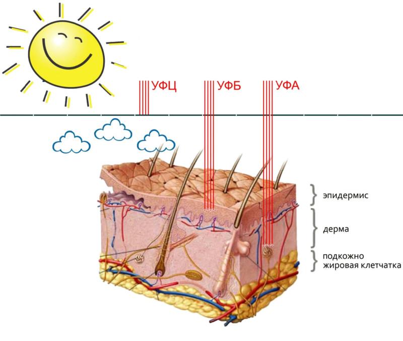Меланома и солнечные лучи