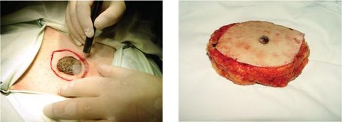 Иссечение опухоли вместе с окружающими ее тканями