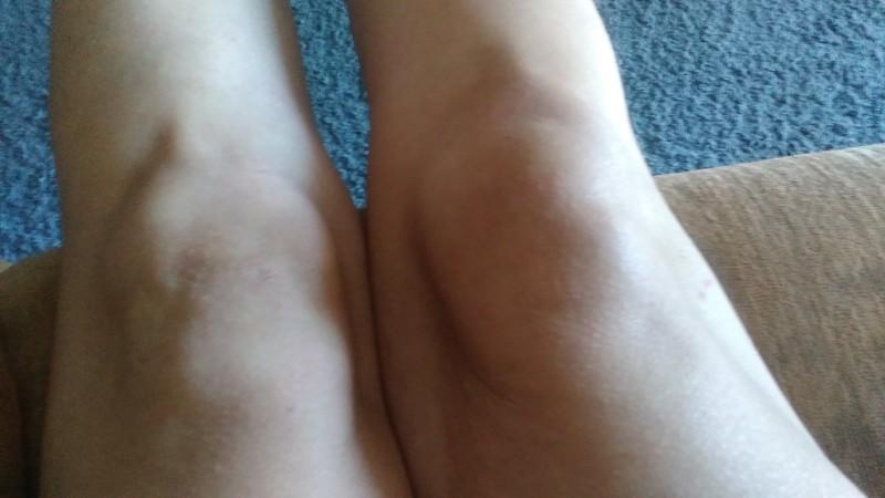 Липома на колене мешает ходить