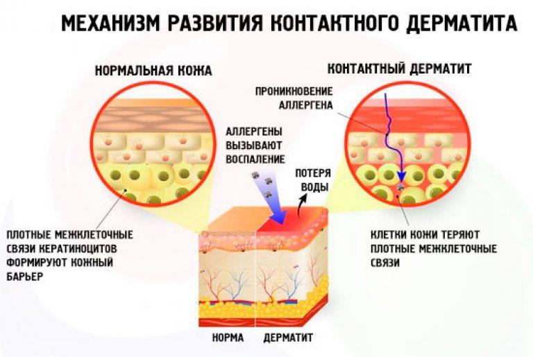 Механизм развития и причины возникновения дерматита