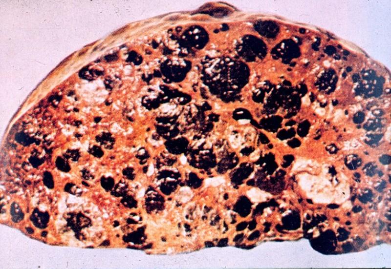 Метастазы в печени