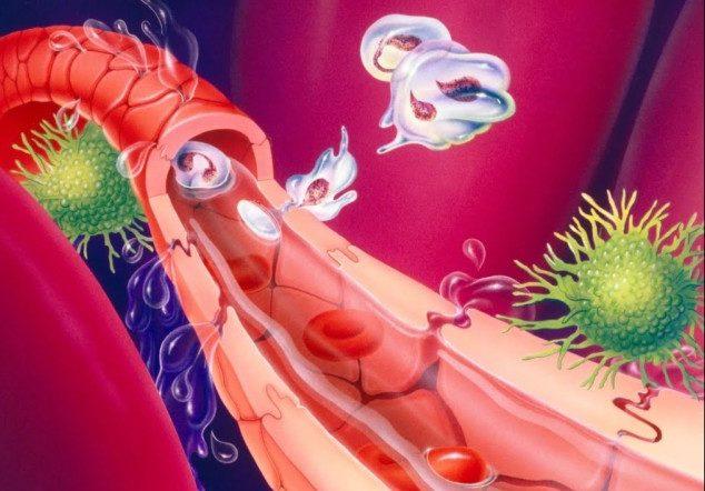 Патогенная микрофлора разносится по всем тканям через кровеносную систему
