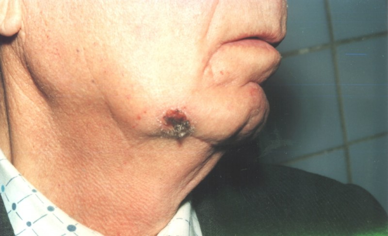Повторное развитие рака кожи