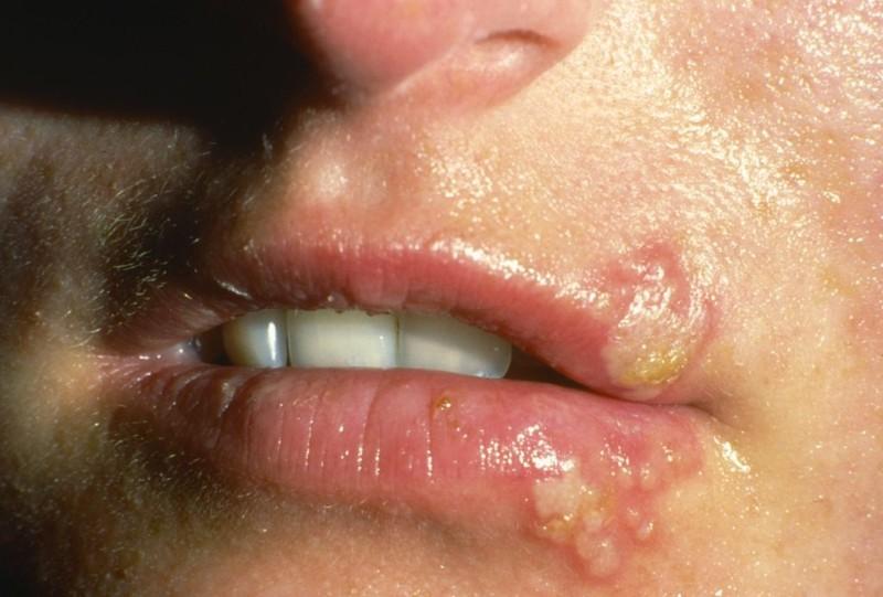 При обострении герпесвирусной инфекции нужно повременить с удалением невуса