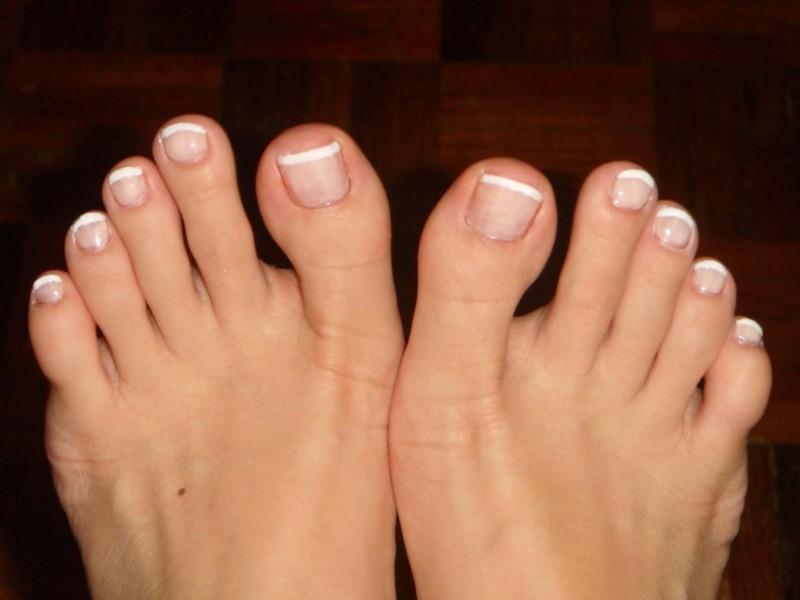 Родимое пятно на женской ноге
