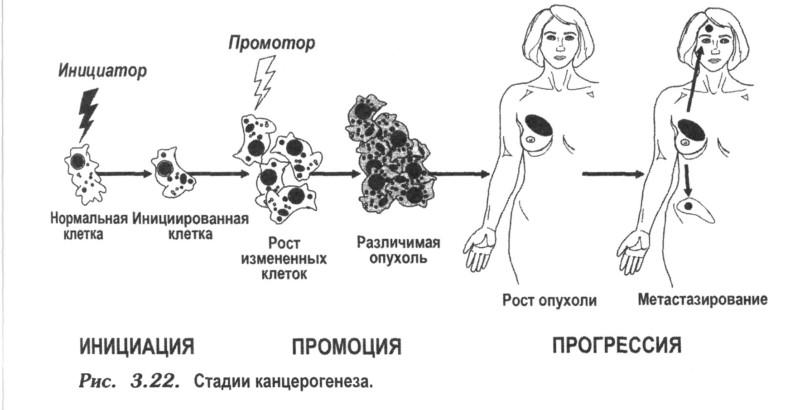 Удаляются участки с метастазами