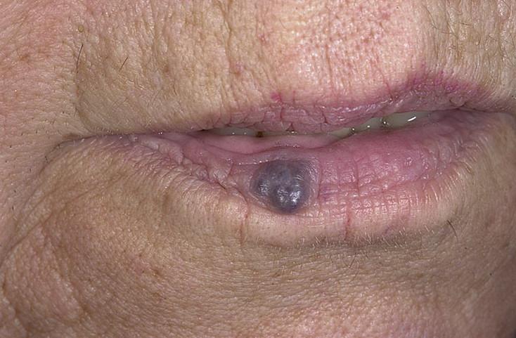 Венозная гемангиома