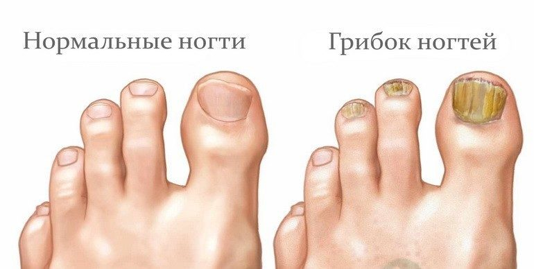Причина утолщения ногтей на ногах у женщин 1